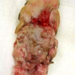 犬の手の腫瘍-1
