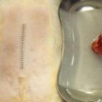 フェレットの副腎腫瘍・摘出術-3